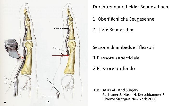 Großartig Anatomie Des Fingers Der Hand Bilder - Anatomie Von ...